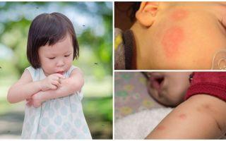 Moskītu kodumi uz pieauguša vai bērna ādas