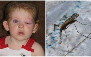 Ko darīt, ja bērnam ir uzpūsts acs pēc moskītu koduma