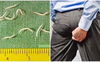 Simptomi un pinworms ārstēšana pieaugušajiem
