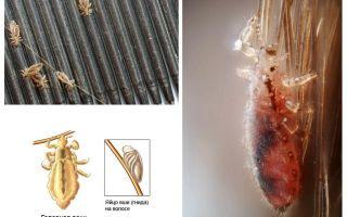 Utu un nitu inkubācijas periods cilvēkiem