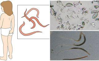 Kas ir pinworms un kā viņi izskatās