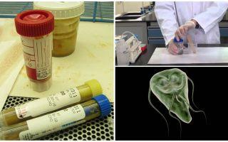 Kā pareizi izdalīt fekālijas uz Giardia, analīzes metodes