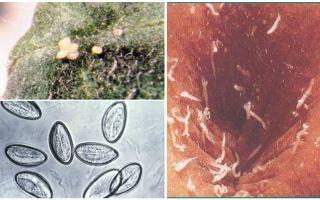 Kā izskatās pinworm olas?