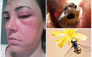 Ko darīt, ja bite nonāk acī un uzpūst