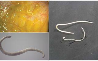 Pinworm infekcijas veidi