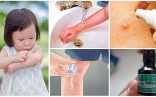 Kā un ko ārstēt moskītu kodumus bērnam